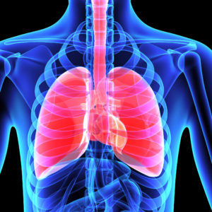 Pneumonia - Covid 19 - Lungs